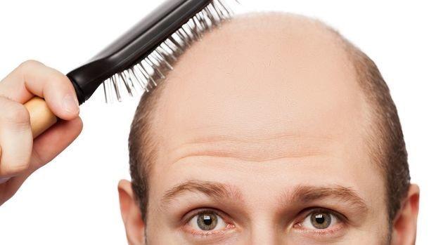 Doenças que fazem o cabelo cair