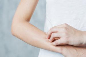 Manifestações na pele